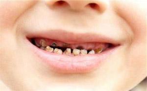 Якщо сняться гнилі зуби